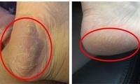 30秒奶奶脚变少女足!只需一喷,脚部死皮、污垢都没了!