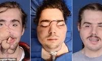 美抑郁男子自杀未遂后毁容 通过面部移植换新貌