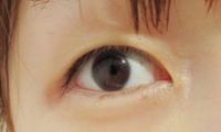 组图:日名博主桃曝双眼皮整容前后对比 称不后悔