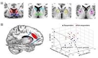 研究揭示重度强迫症手术治疗的神经环路机制